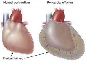 Cardiac temponade