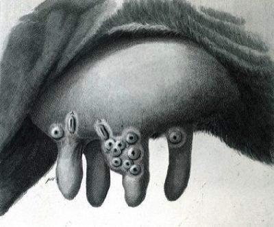 Cow pox