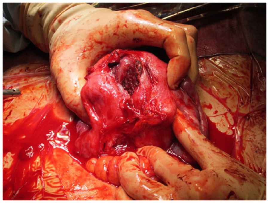 Ruptured Uterus