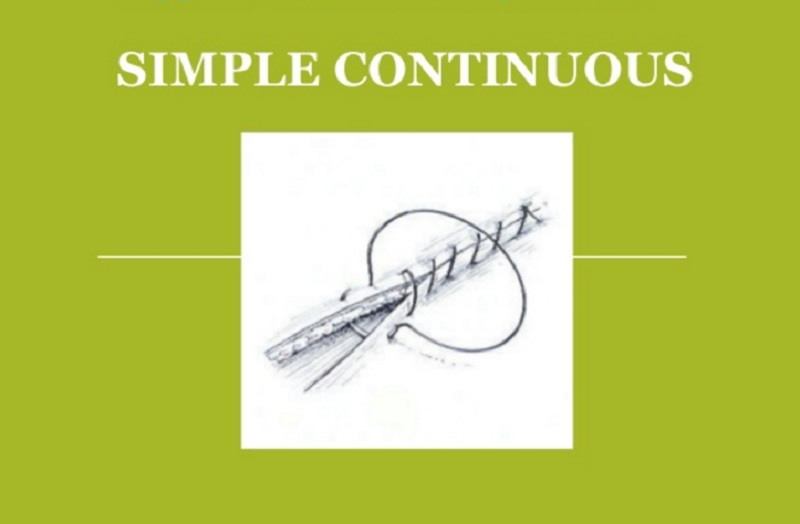 Simple Continuous Suture Pattern