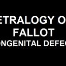 TETRALOGY OF FALLOT A CONGENITAL DEFECT