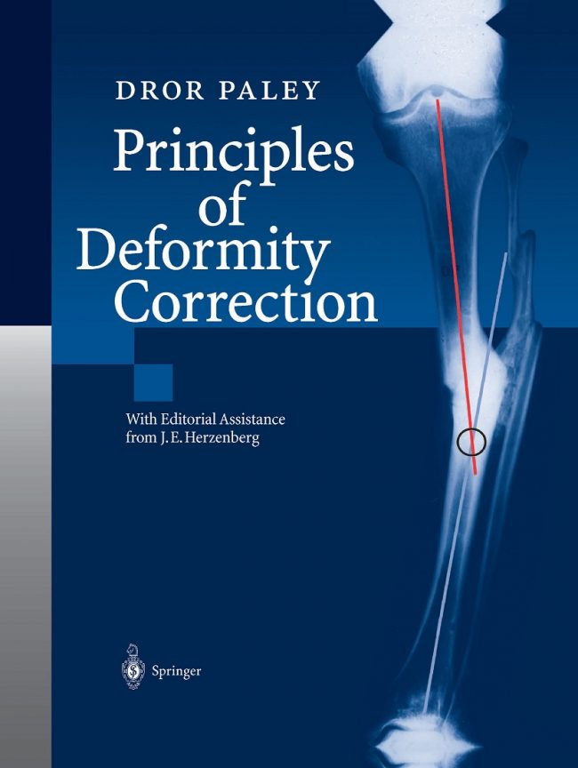Principles Of Deformity Correction PDF
